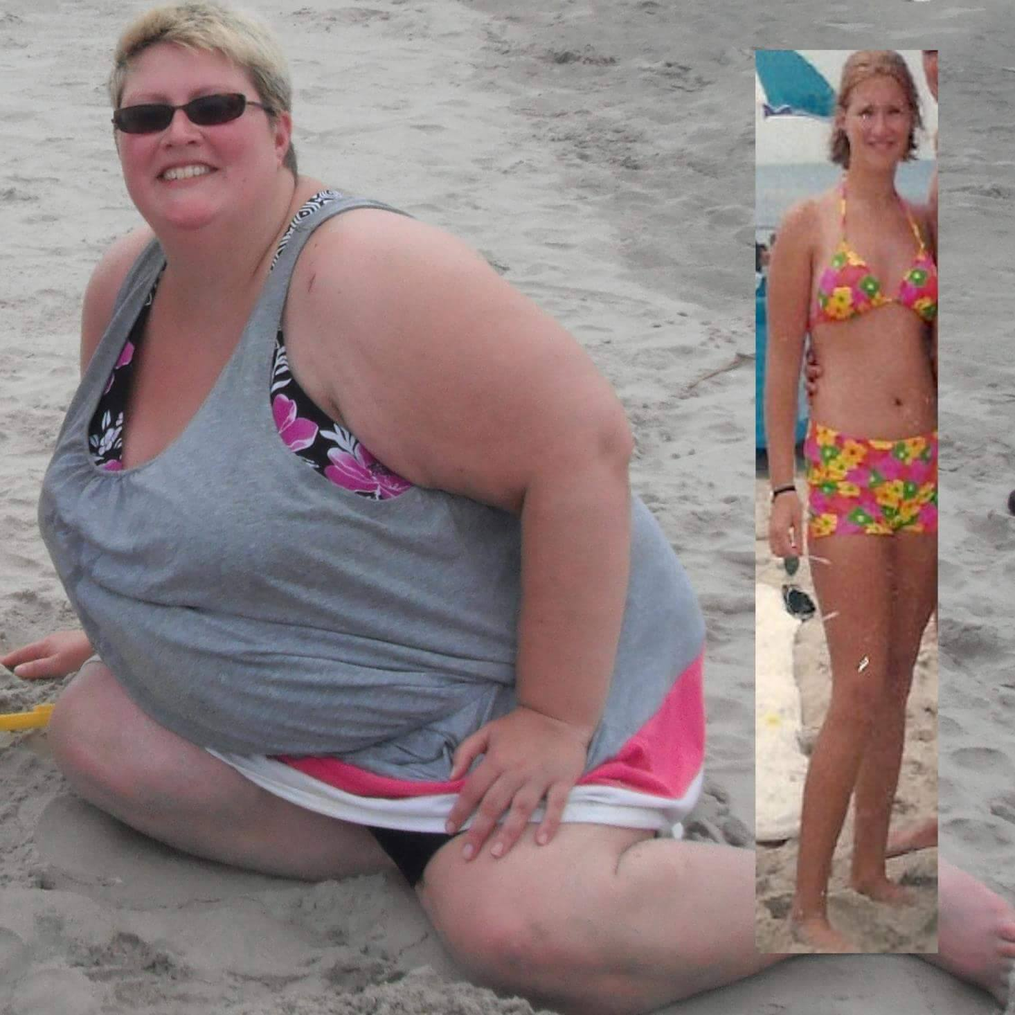 Just to give a comparison. Bikini H.S. body vs. A couple of years ago when all my Cushing's weight came back